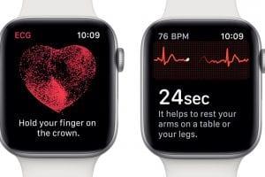 EKG Apple Watch 4