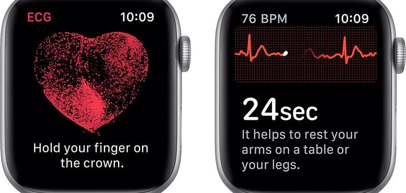 EKG Apple Watch 4